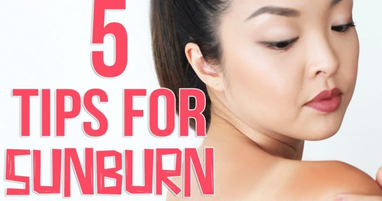 5 Effective Tips To Prevent And Get Rid Of Sunburn Fast